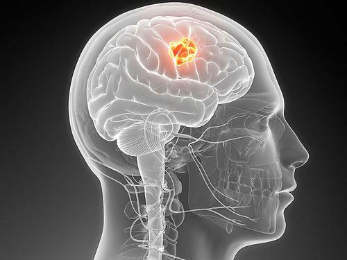 Khả năng chữa ung thư não từ virus Zika - Ảnh 1.