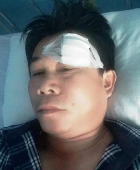 Truy bắt cát tặc, Phó Phòng Cảnh sát môi trường bị thương - Ảnh 2.