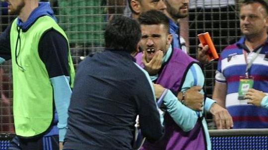 Trợ lý HLV Bosnia đấm gãy răng cầu thủ Hy Lạp - Ảnh 3.