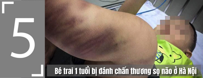 [eMagazine] - 5 vụ bạo hành trẻ em gây phẫn nộ ở Việt Nam - Ảnh 12.