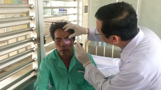 Clip các nạn nhân vụ tạt a xít ở TP Biên Hòa - Ảnh 2.