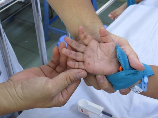Hơn 42.700 ca tay chân miệng, Bộ Y tế hướng dẫn người dân đối phó - Ảnh 2.