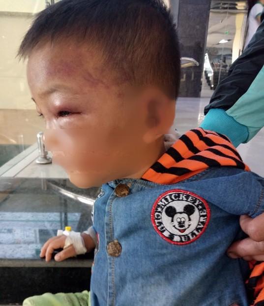Bé 2 tuổi thâm tím mặt, nhập viện nghi bị bố dượng bạo hành - Ảnh 1.