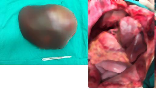 Nam thanh niên mang khối u gan khủng hiếm gặp trên thế giới - Ảnh 2.
