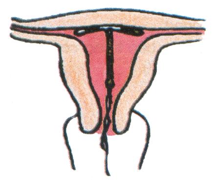 Vòng tránh thai có gây vướng khi làm chuyện ấy? - Ảnh 1.
