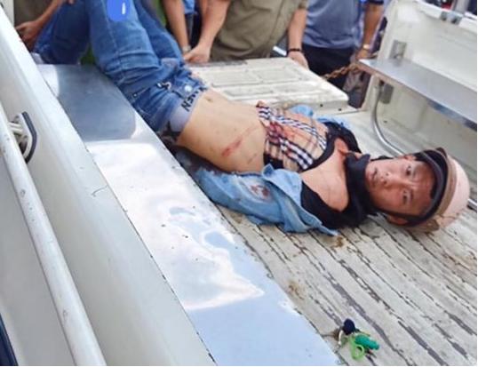 Bắt tên trộm xe SH, 2 người ở quận Bình Tân bị đâm trọng thương - Ảnh 1.