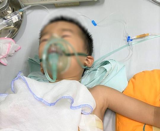 Bé 4 tuổi sờ đầu nghé, bị trâu mẹ húc thủng phổi - Ảnh 1.