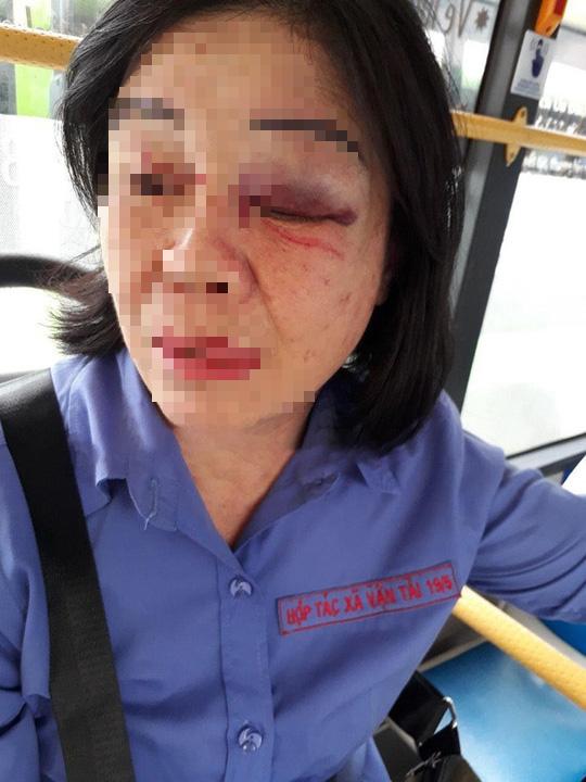 TP HCM: Nữ tiếp viên xe buýt bị khách đấm bầm mắt - Ảnh 1.