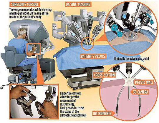 Robot cấy buồng trứng đông lạnh 11 năm cho cô gái bị ung thư - Ảnh 1.