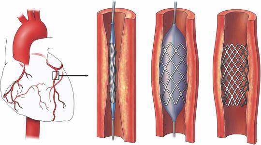 Stent thế hệ mới cho bệnh nhân mạch vành - Ảnh 1.