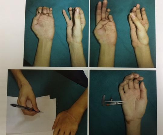 Hai bàn tay đứt rời hoàn toàn phục hồi kỳ diệu sau ghép nối - Ảnh 1.