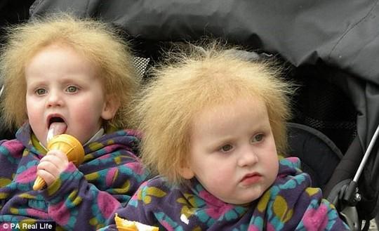 Hai cô bé song sinh bị hội chứng tóc xù - Ảnh 4.