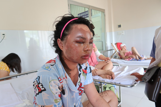 Lời kể kinh hoàng của 4 nạn nhân bị tạt a xít - Ảnh 1.