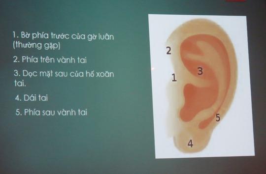 Bỏ quên đoạn tăm nhang trong tai suốt 1 năm - Ảnh 3.