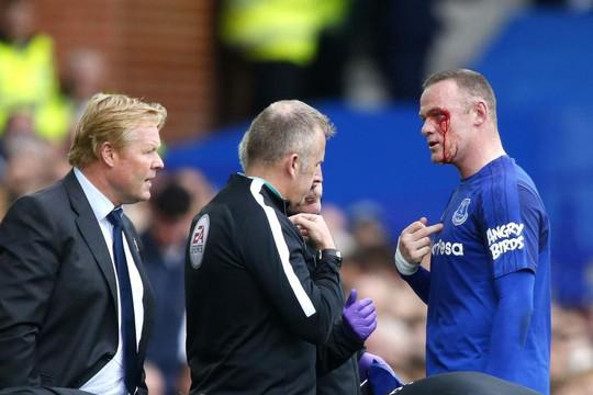 Dính chỏ đối thủ, Rooney mắt bê bết máu - Ảnh 4.