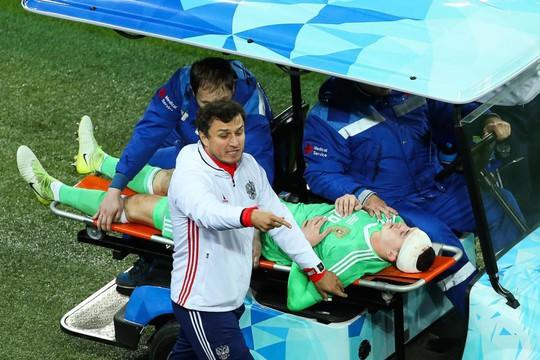 Thủ môn tuyển Nga tét đầu sau cú va chạm kinh hoàng - Ảnh 4.
