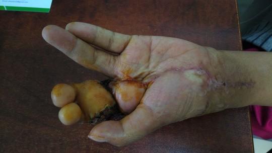 Biến ngón chân thành ngón tay cho cô gái gặp nạn - Ảnh 2.