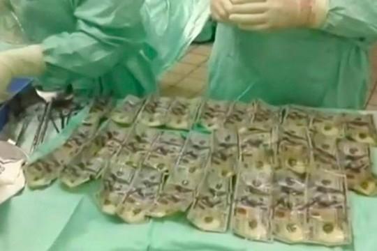 Những tờ 100 USD được lấy từ bụng người phụ nữ 30 tuổi.