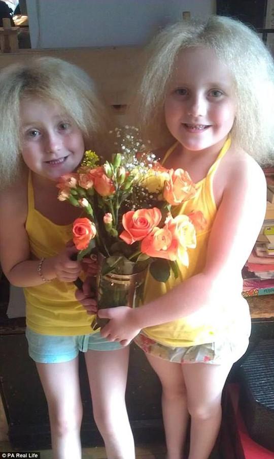 Hai cô bé song sinh bị hội chứng tóc xù - Ảnh 3.