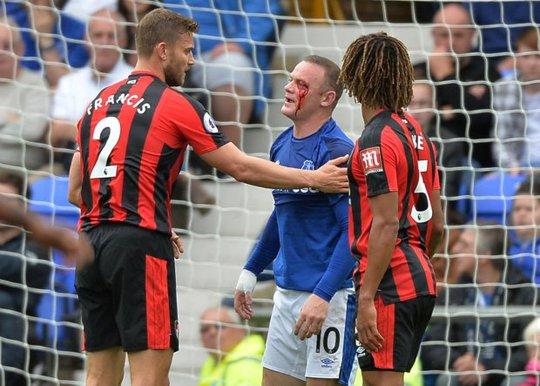 Dính chỏ đối thủ, Rooney mắt bê bết máu - Ảnh 2.