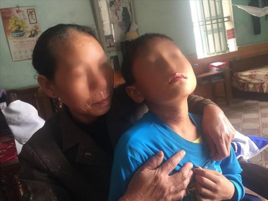 7 giờ kinh hoàng của người mẹ và em trai dưới mũi dao nghịch tử - Ảnh 3.