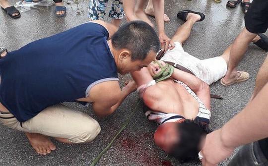 Xông vào nhà bế bé gái ra ô tô, người đàn ông lạ mặt bị đánh trọng thương - Ảnh 1.