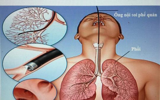 Nữ bệnh nhân tử vong sau nội soi phế quản do mất máu nhiều - Ảnh 1.