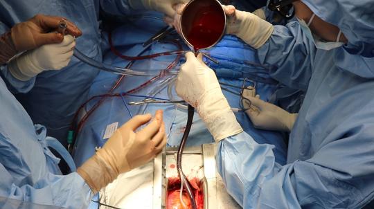 TP HCM: Mổ tim miễn phí cho mọi đối tượng - Ảnh 1.