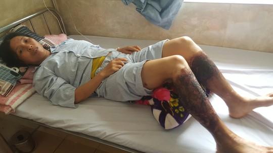 Lội mương nước nhiễm hóa chất, người phụ nữ bỏng nặng 2 chân - Ảnh 1.