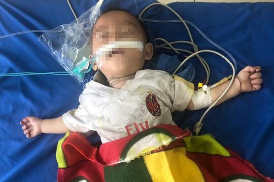 Chữa tiêu chảy bằng thuốc phiện, bé trai 12 tháng tuổi nguy kịch - Ảnh 2.