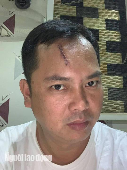 Giang hồ vây xe chở công an ở Đồng Nai: Người bị đánh yêu cầu khởi tố - Ảnh 1.