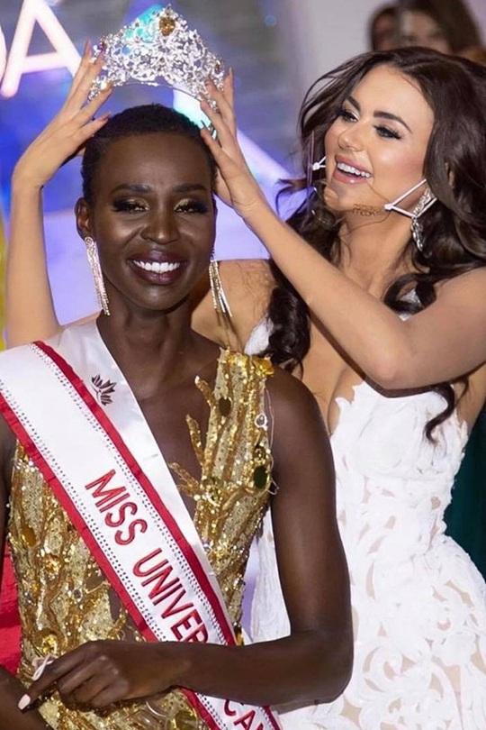 Tân Hoa hậu Hoàn vũ Canada bị chê về nhan sắc - Ảnh 1.