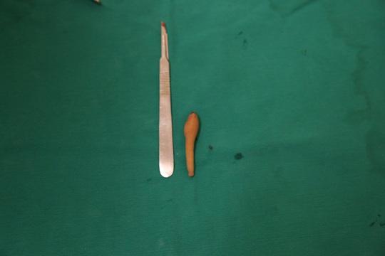 Phẫu thuật cắt đuôi dài hơn 9 cm cho bé gái 5 tháng tuổi - Ảnh 2.
