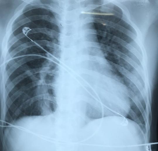Hy hữu cứu sống bệnh nhân được gia đình xin cho về nhà lo hậu sự - Ảnh 2.