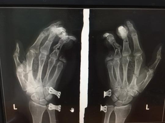 Vừa chơi game vừa sạc pin điện thoại khiến nam thanh niên bị dập nát bàn tay - Ảnh 1.
