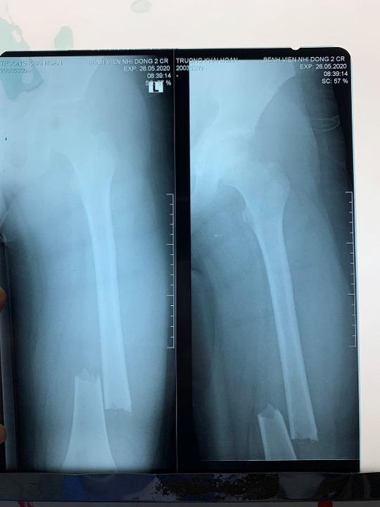 Bác sĩ thở phào khi 2 học sinh bị cây phượng bật gốc đè đã tỉnh sau phẫu thuật - Ảnh 2.