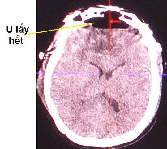 Cứu sống người phụ nữ có khối u não to bằng quả trứng gà - Ảnh 1.