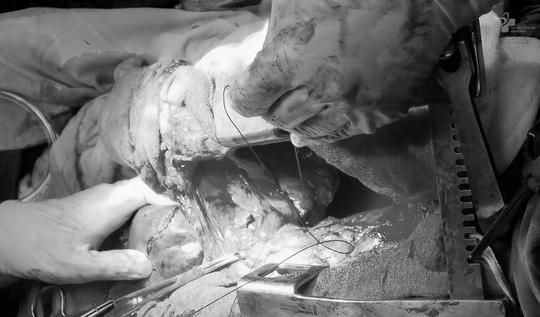HY HỮU: Người đàn ông bị tai nạn giao thông gan dính chặt phổi - Ảnh 1.