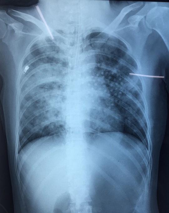 Động kinh rồi té xuống ao khiến bùn lấp đầy phổi, 1 phụ nữ thoát chết thần kỳ - Ảnh 1.