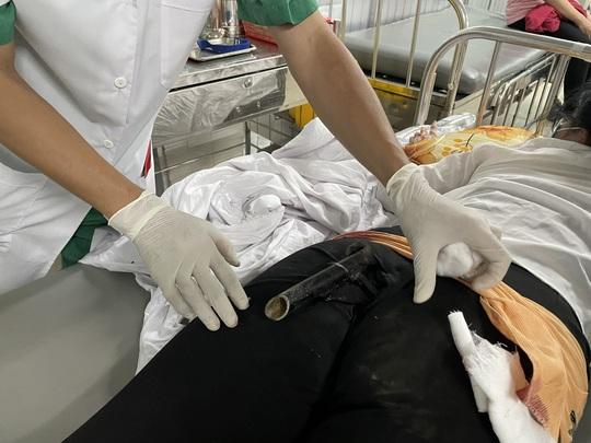 Va chạm giao thông, cô gái bị chân chống xe máy đâm thẳng vào mông - Ảnh 1.