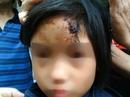 Kỷ luật sư trụ trì vụ bé gái thương tích trong chùa
