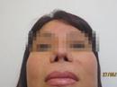10 năm thở bằng miệng do 6 lần nâng mũi