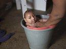 Brazil: Gia tăng trẻ sơ sinh bị tật đầu nhỏ