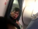 Bác sĩ gốc Việt bắt đầu đưa United Airlines ra tòa