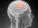 Khả năng chữa ung thư não từ virus Zika