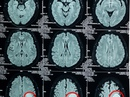 Một phụ nữ có khối u não to như trái bóng tennis