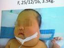 Loại bỏ bướu quái chứa xương, tóc, cứu sống bé sơ sinh