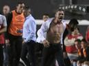 Cựu hậu vệ Arsenal xé áo sau khi bị truất quyền chỉ đạo