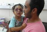 Trúng tên lửa Israel, bé gái Palestine bị ném lên không trung