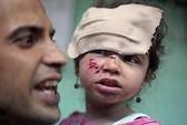 Israel pháo kích trại tị nạn của Liên Hiệp Quốc ở Gaza